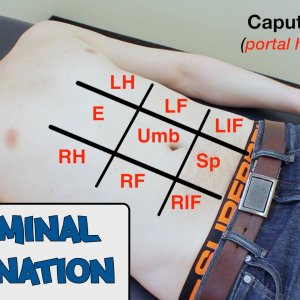 Abdominal Examination - OSCE Guide (New Version)