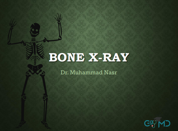 x-ray دكتور محمد نصر.png